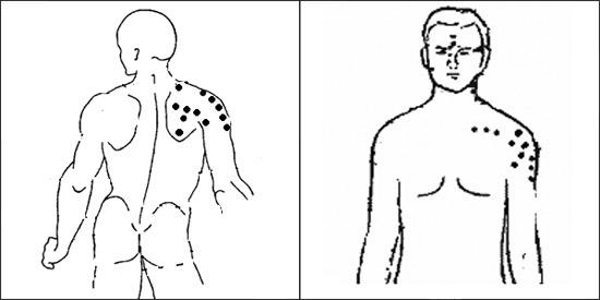 народные средства при артрозе мелких суставов